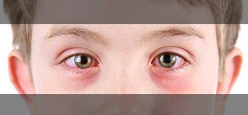 یکی از علل پف زیر چشم حساسیت و آلرژی است