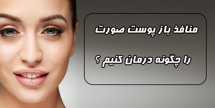 ماسک برای درمان منافذ باز پوست صورت