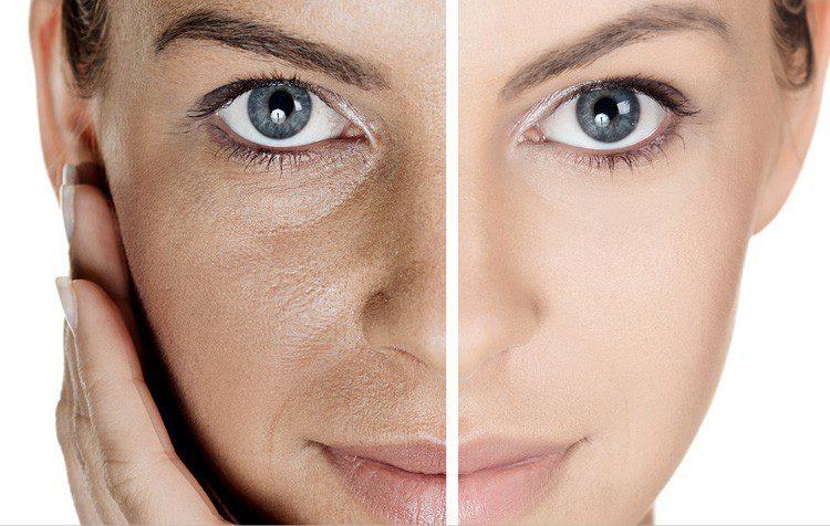 ماسک صورت برای درمان منافذ باز پوست