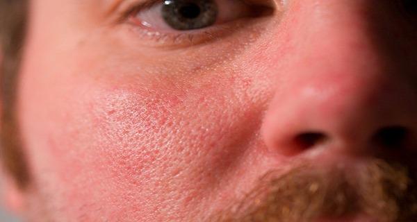 علت باز شدن منافذ پوست صورت