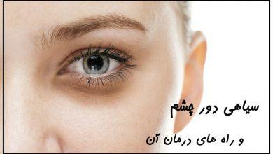 سیاهی دور چشم و درمان آن