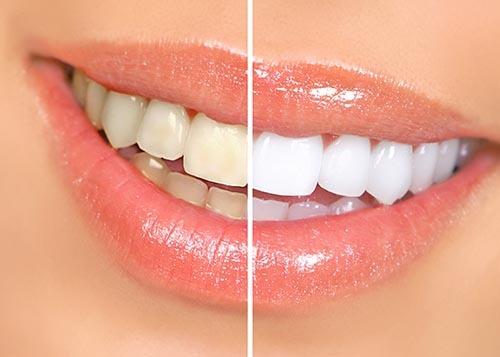 برای سفید کردن دندان از روغن افتابگردان استفاده کنید