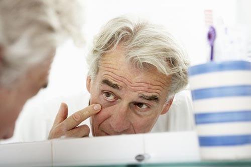 تاثیر کهولت سن بر پف زیر چشم