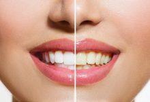 سفید کردن دندان بصورت طبیعی